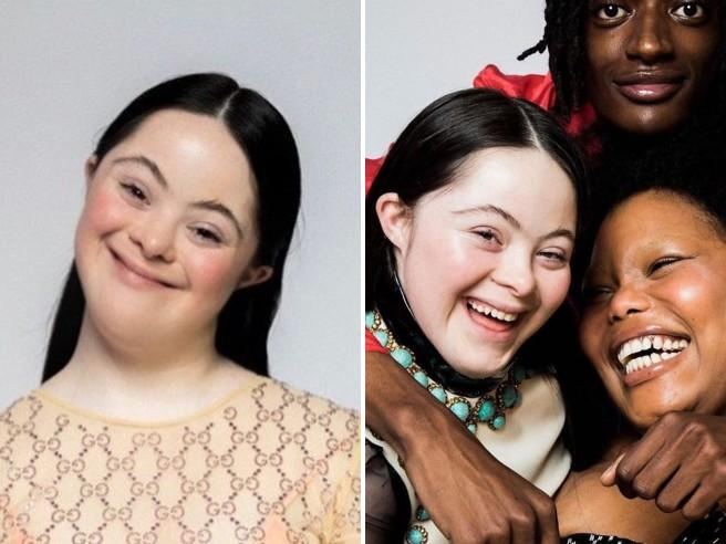 Ellie Goldstein, la modella con la sindrome di Down nella campagna di Gucci: la disabilità non è un limite